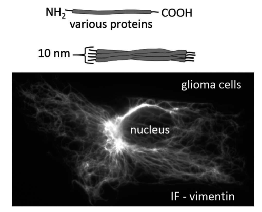Distribution of intermediate filaments (composed of vimentin) in primary astrocytes. Scale bar