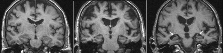 Coronal Tweighted MRI images of
