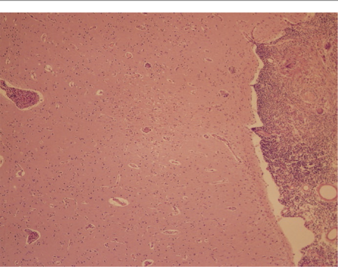 x4XX: Low-power photomicrograph showing granulomas within the meninges. A small granuloma is seen in the parenchyma of the brain (H&E, original magnification x 40)