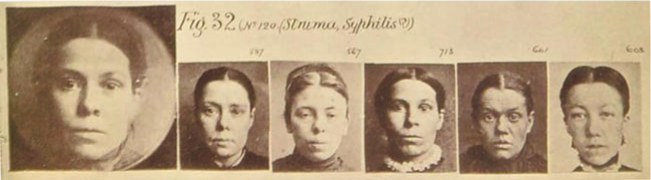 Francis Galton's composite portrait of the phthisical syphilitic type