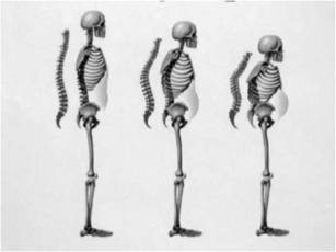 Progression of spine deformity and the loss of height. Note that organs become compressed or shifted in position with progression of osteoporosis. Courtesy of the National Association of Nurse Practitioners in Women's Health (NPWH).